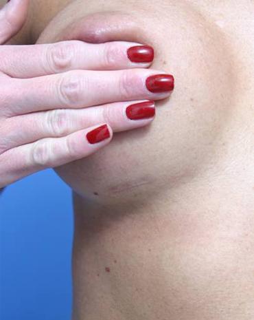 Breast Augmentation Inframammary Scar