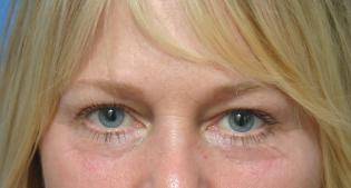 EyelidLift-Before